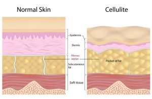 hgh restore celllulite