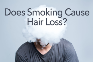 hair loss smoking